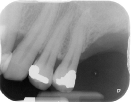 Periapical inicial