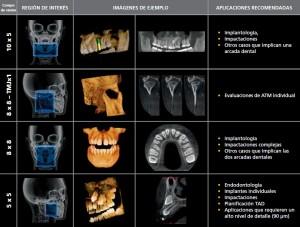 Aplicaciones según el volumen de la tomografía.